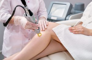 electrolysis vs. laser hair removal